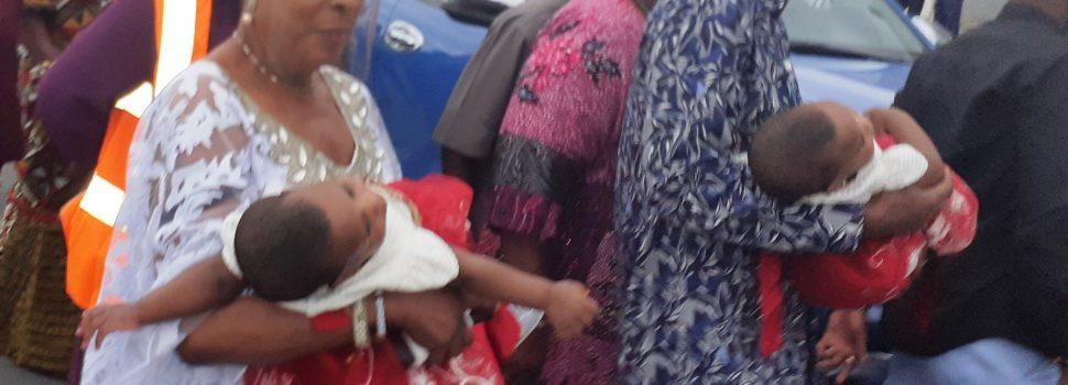 Bayelsa'sFirst Siamese Twins Surgery Successful, Dep Gov Donates N1m